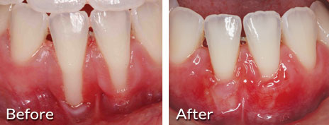 Gum Recession Treatment In Pasadena Pasadena