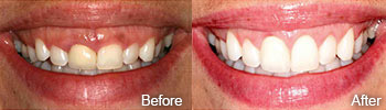Cosmetic Gum Treatment