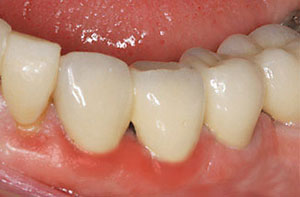 Problems with your Dental Implants