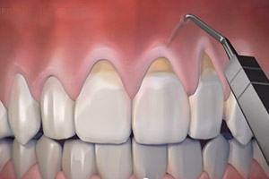Pinhole Surgical Technique For Receding Gums Pasadena